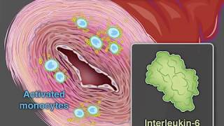 Treating Giant-Cell Arteritis