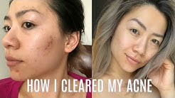 hqdefault - Murad Anti Aging Acne Cleanser Reviews