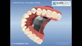 Protez Diş Fiyatları Ve Genel Bilgi