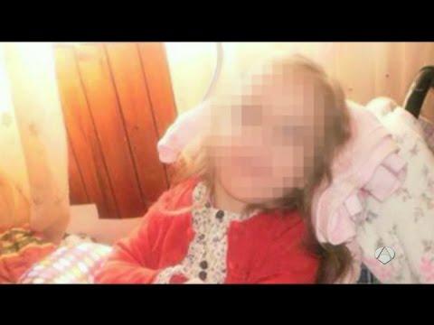 El debate de la muerte digna: falleció Andrea, la nena de 12 a la que retiraron la comida