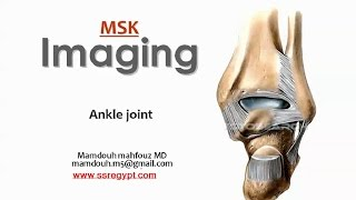 Imaging of Ankle joint -Erbil- (May 2014) Dr Mamdouh Mahfouz (In Arabic)