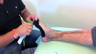 Kinesio tape for Hallux Valgus