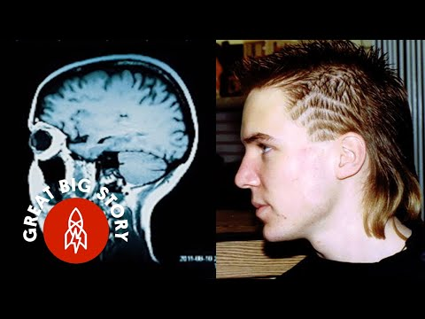 How Brain Trauma Turned This Guy Into a Genius