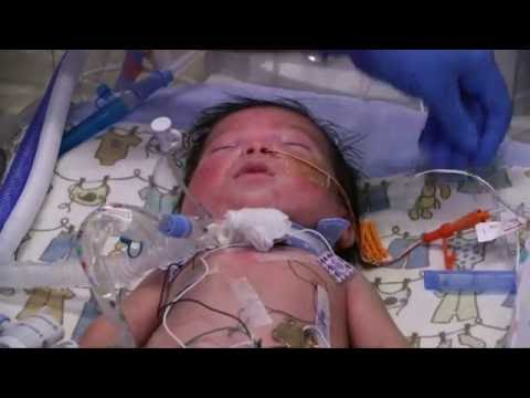 Your Preemie as well as their Respiratory system System