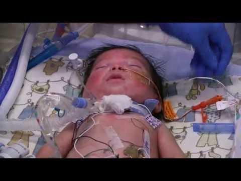 Managing Risks for Premature Babies