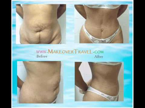 Panniculectomy before and after pictures - YouTube
