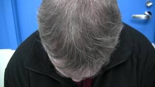 Best Hair Transplant Clinic - 1.800.859.2266