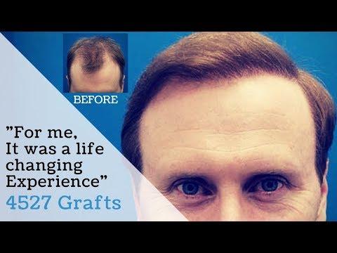 Hasson and Wong Hair Transplant Review November 2015