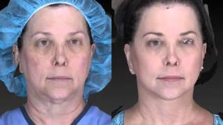 Facelift 3D Before and After-10
