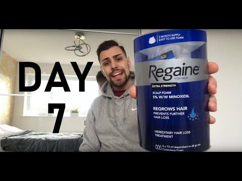 minoxidil-5%-regaine-on-beard:-day-7