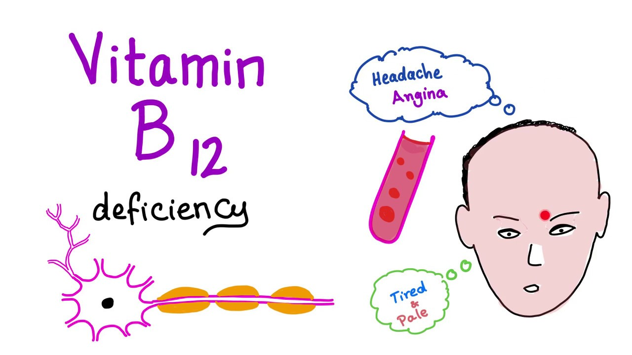 Vitamin B12 (Cobalamin) Deficiency (Causes, Symptoms ... B12 Deficiency