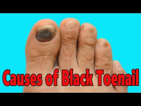 CAUSES OF BLACK TOENAIL!! HOW TO GET RID OF A BLACK TOENAIL!! CURE ...