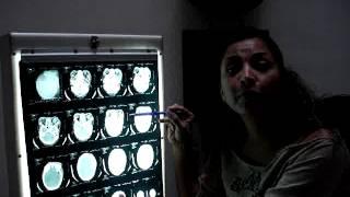 Interpretación de Tomografía de Cráneo para enfermeros