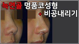 늑연골 명품코성형 + 비공내리기 feat.전후사진 #자…