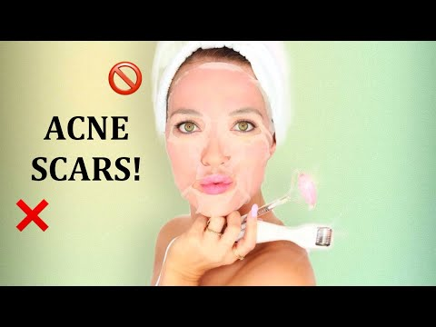 HOW TO HEAL ACNE SCARS AND SHRINK LARGE PORES   MICRONEEDLING   AT HOME FACIAL   RITA ALMUSA