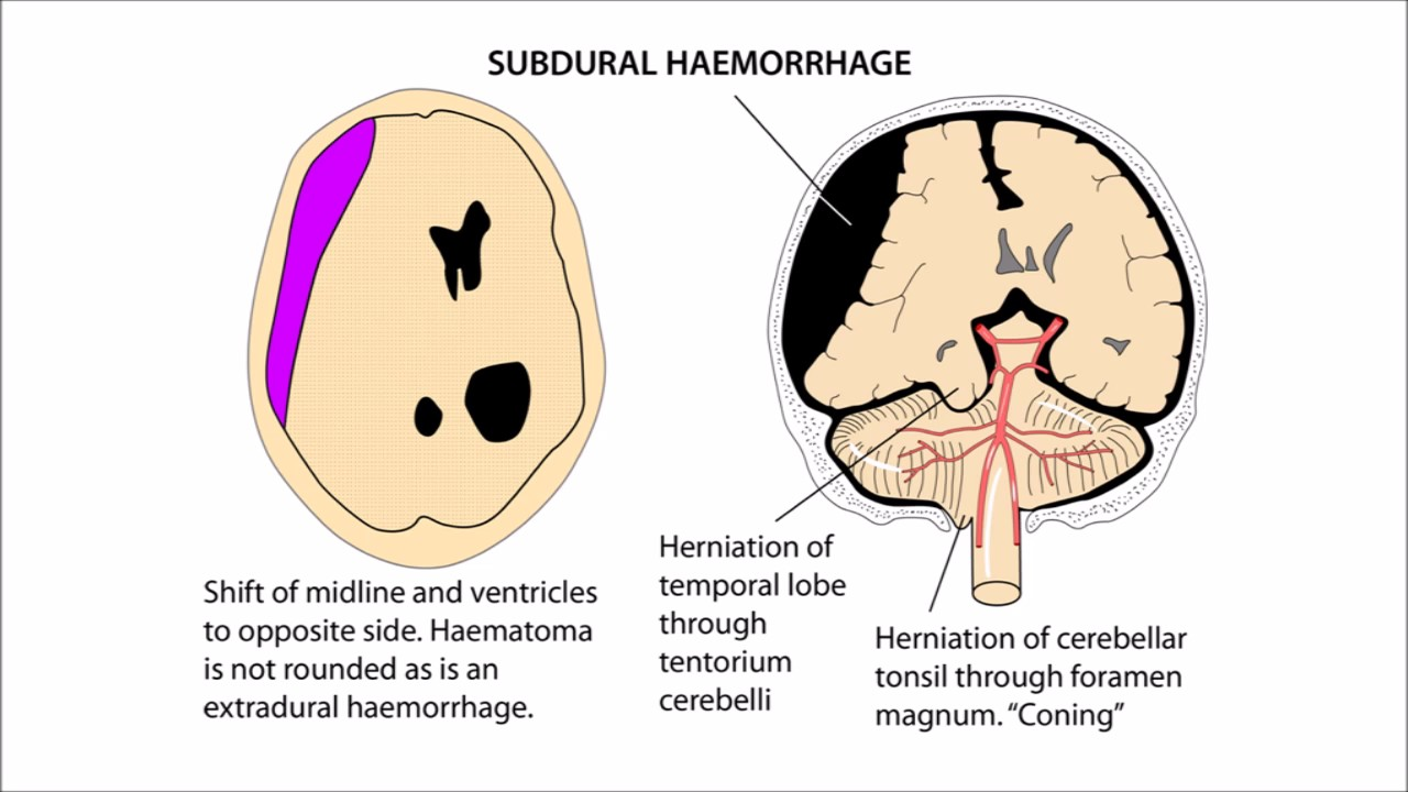 Anatomy Head and Neck Revision on Intracranial Haemorrhages - YouTube