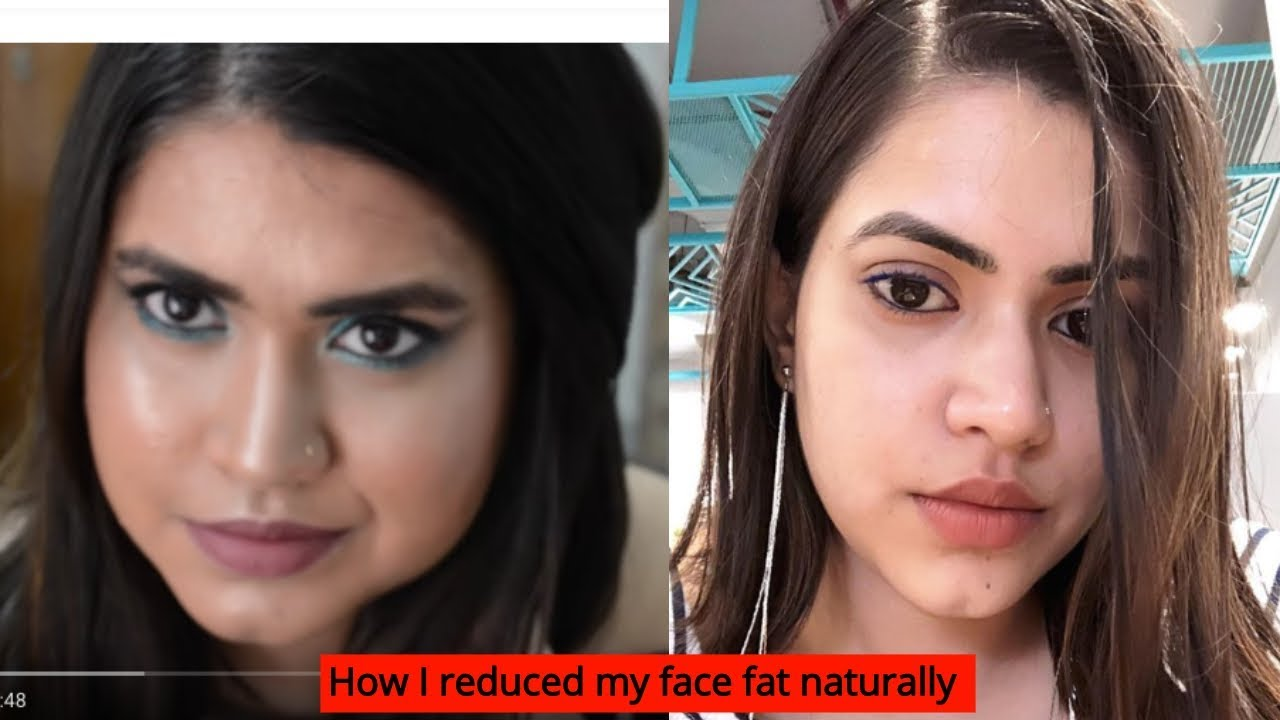 How to reduce face fat naturally | How I got rid of my ...