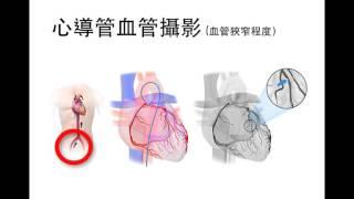 急性冠心症與心肌梗塞 ACS & Mi