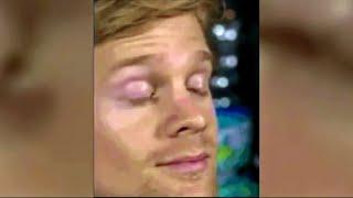 SF Man Behind Viral 'Blinking Guy' GIF Backs Multiple Sclerosis Fundraiser