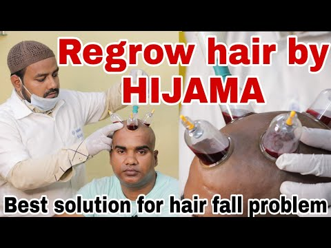 Regrow Hair By HIJAMA   100% Result   Hair Fall Solution   Cupping Treatment   Mahim.