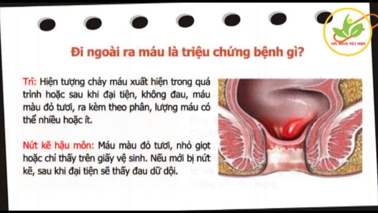 Đi ngoài ra máu là triệu chứng của rất nhiều bệnh nguy hiểm