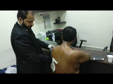 dr baigs advance unani herbal clinic 379 th unani medicine & hijama camp in singapore