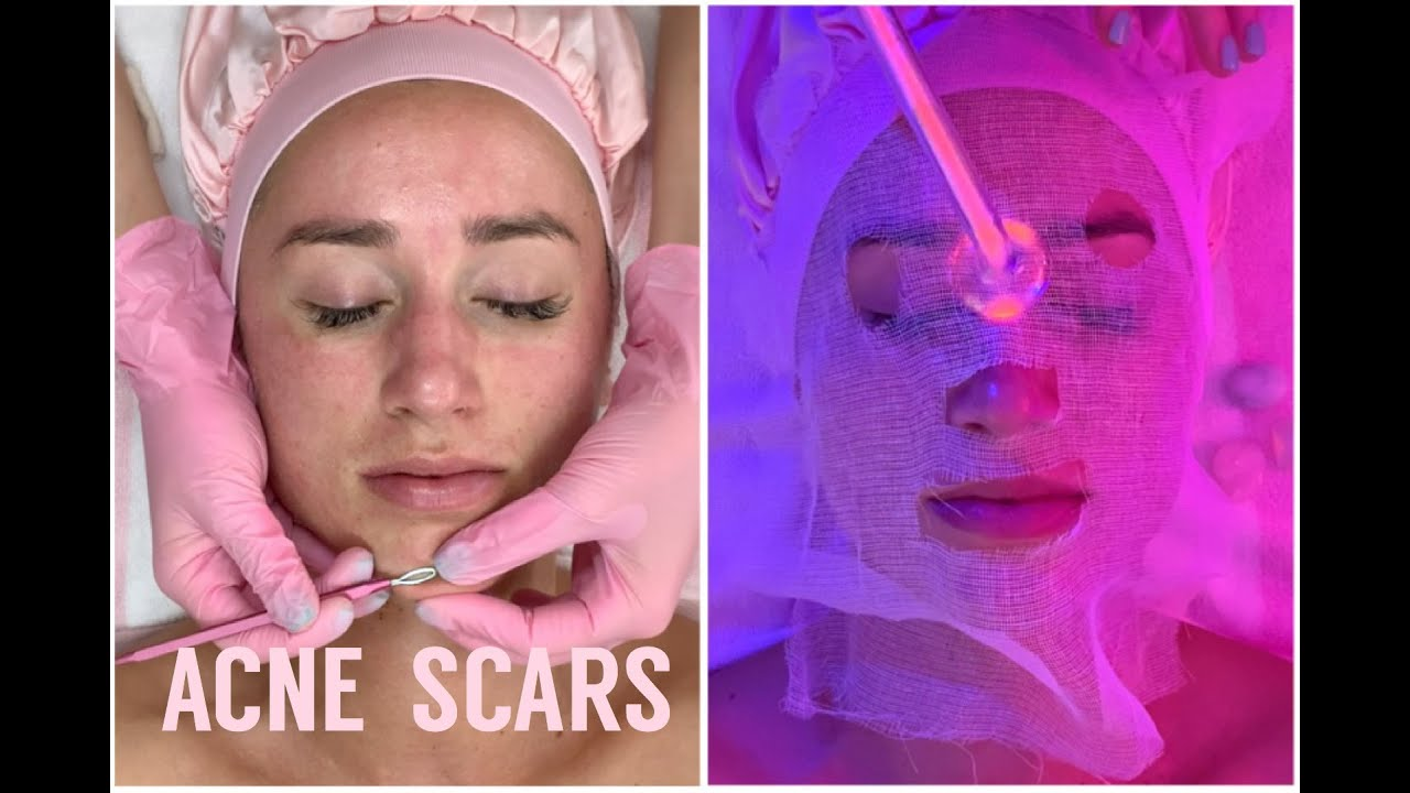 Acne Scar Resurfacing & Enzyme Tightening Facial | Jadeywadey180