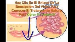 cura para herpes labial novedosa y natural