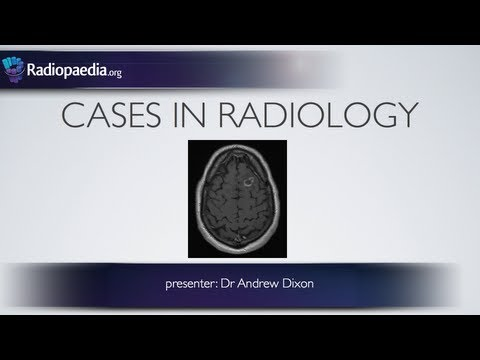 Cases in Radiology: Episode 1 (neuroradiology, CT, MRI)