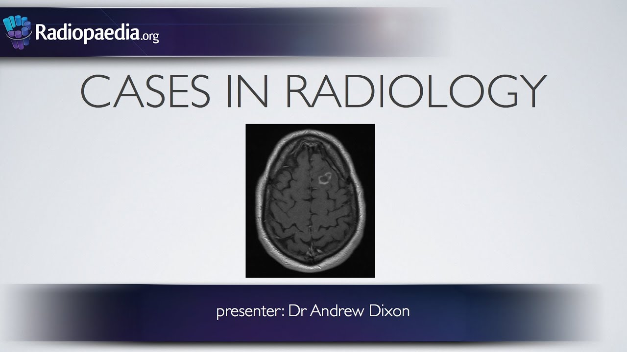 Neuroradiology Cases (Cases in Radiology)