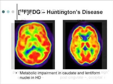 Advances in Alzheimer's Disease: Imaging and Biomarker Resea