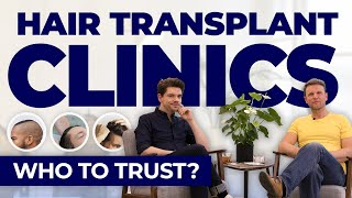 Hair Transplant Clinics: Who To Trust?