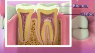 Pijat sakit gigi adalah cara menghilangkan sakit gigi yang cepat dan telah terbukti ampuh. Cara meng.