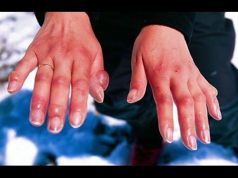 How to Treat Swollen Fingers