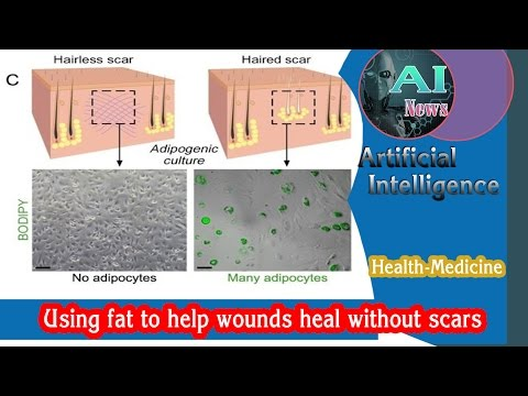 [Health] AI - Using Fat to Help Wounds Heal Without Scars