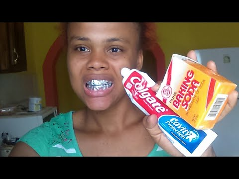 How I Whitten My Teeth Using Baking Soda And Toothpaste Youtube
