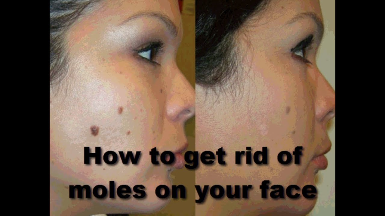 How To Get Rid Of Moles On Your Face Remedies Quick At