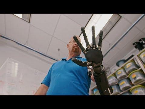 The Real Bionic Man   Freethink Superhuman
