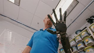 The Real Bionic Man | Freethink Superhuman