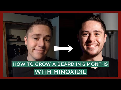 i-grew-a-beard-from-nothing-in-6-months-|-6-month-minoxidil-transformation