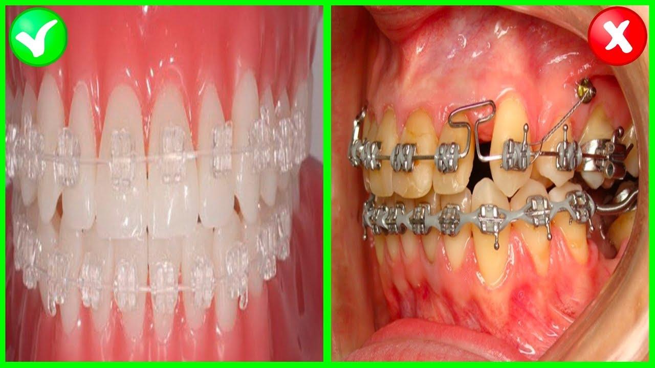 Voce Usa Aparelho Tem Dentes Amarelos Mal Halito Entao Saiba Isso