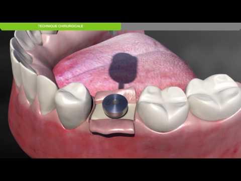 Biotech Dental :Protocole chirurgical de pose d