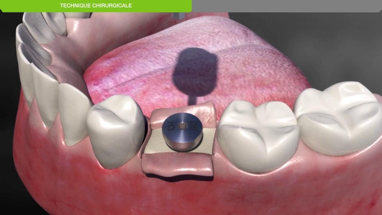 Biotech Dental :Protocole chirurgical de pose d'un implant dentaire KONTACT  sous-crestal