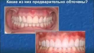 Люминиры - голливудские виниры(В чем разница и особенности - http://www.kavitron-clinic.ru/dentistry-today/cosmetic-dentistry/veneers/, 2014-05-21T11:37:25.000Z)