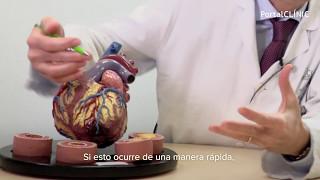 Crónica del corazón isquemia