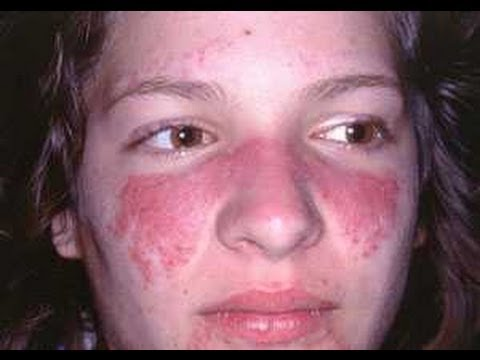 Skincare Product Allergies [DermTV.com Epi #495]