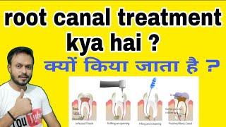 Root canal treatment kya hota hai |root canal treatment in hindi |रुट कैनाल |