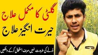 Jisam Main Gilti Ka ilaj | Gilti ka ilaj in Urdu | Gland Treatment at home
