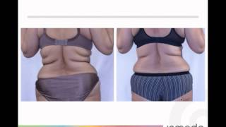 Fat Reduction and Skin Tightening – BodyFX Technology