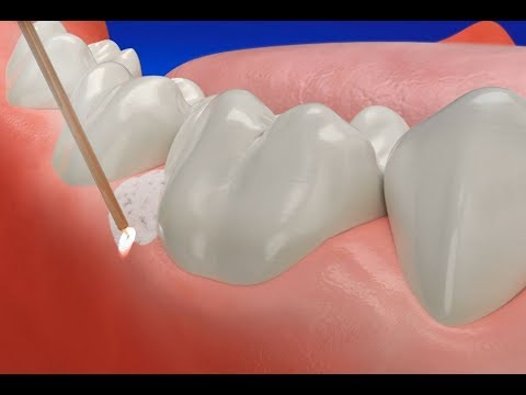 How Gum Disease Treatment Laser works
